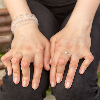 hands suffering from Rheumatoid Arthritis