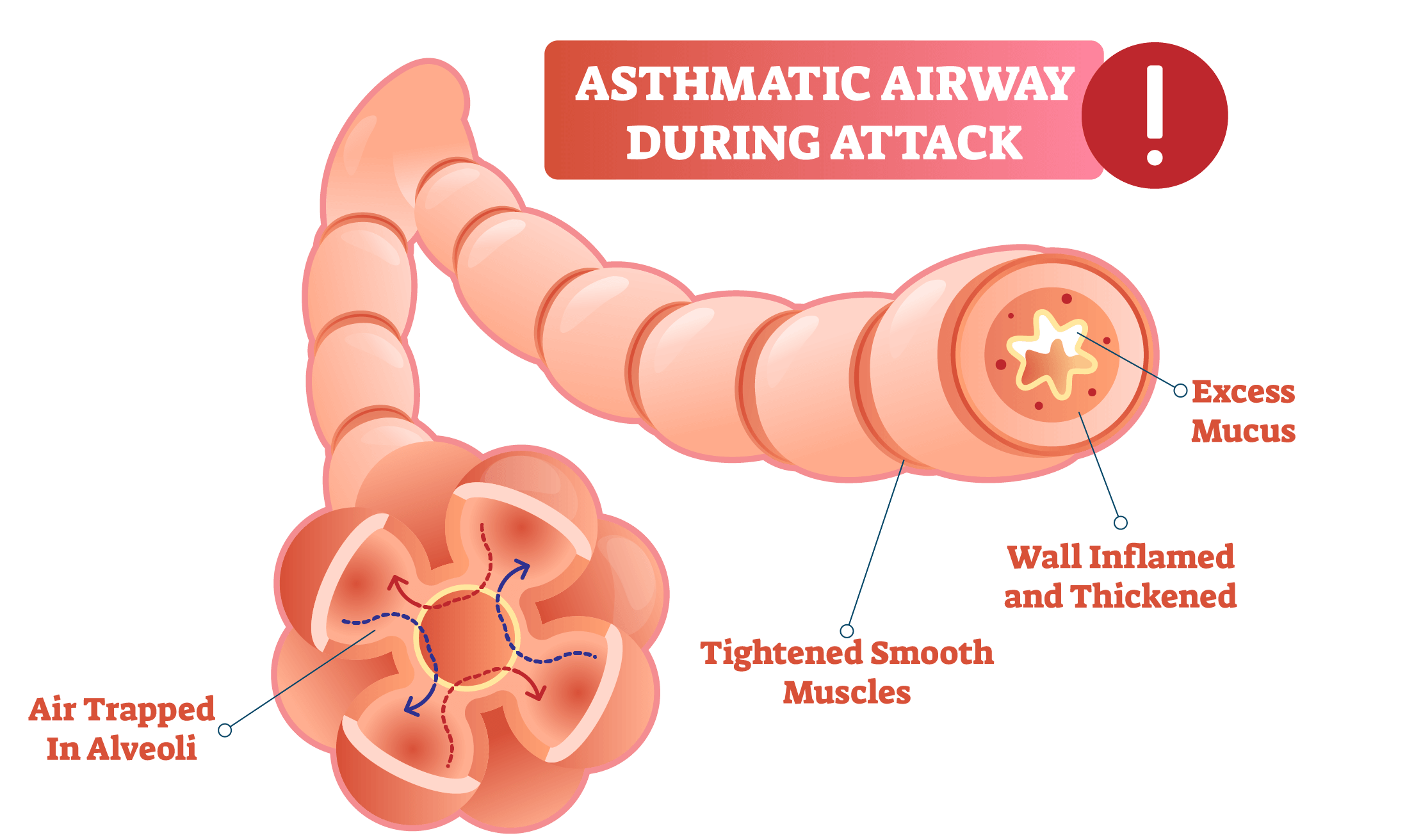 asthmatic airway during an attack