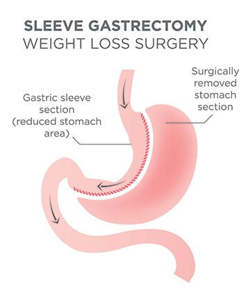 diagram of stomach with gastric sleeve